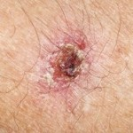 Think, picture of cancerous moles by the anus consider, that